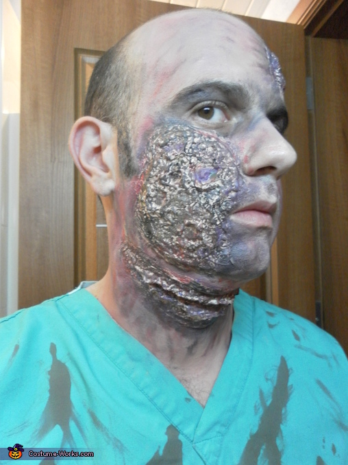 Zombie face effects with liqiud latex and make up. Fake blood not yet applied., Zombie Doctor & Nurse Costume