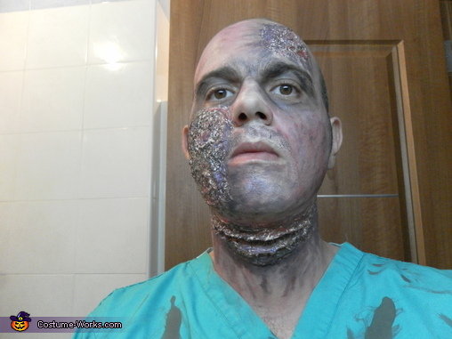 Zombie face effects with liqiud latex and make up. The slit throat is clearly visible in this photo. Fake blood not yet applied., Zombie Doctor & Nurse Costume