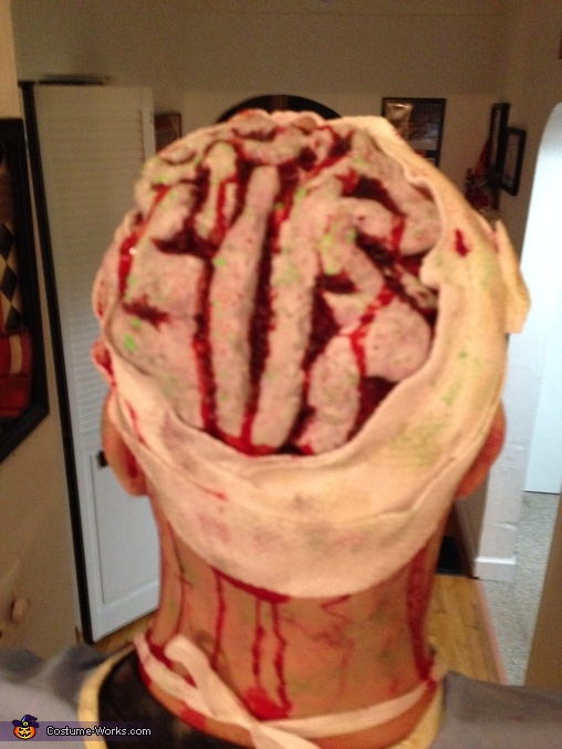 My head doesn't feel so good, Zombie Operating Room Costume